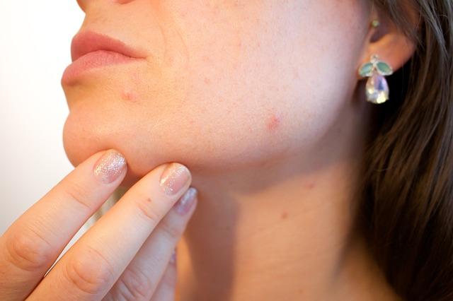 Bioderma Sébium Global – cena, recenzie a skúsenosti s kozmetikou na akné