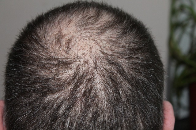 Forcapil vplýva priaznivo na spomalenie vypadávania vlasov a zároveň  podporuje ich rast. Keďže hlavnou základnou zložkou vlasov je keratín 9901d0a1aca