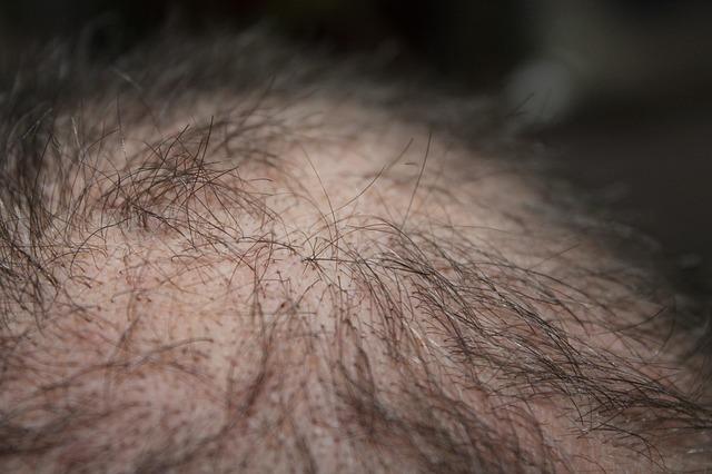 príčiny a liečba vypadávania vlasov